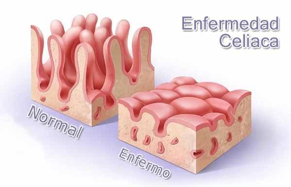 En la imagen se puede ver perfectamente, como las vellosidades que se encargan de la buena absorcion del gluten, no existen en el intestino de un celiaco.